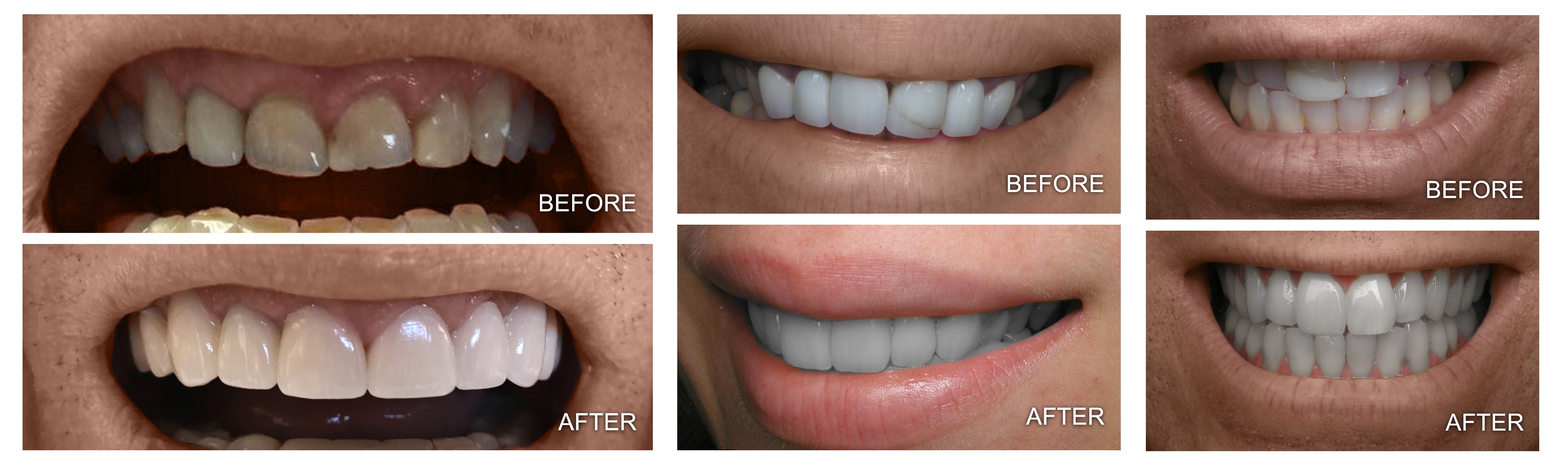 Before and After Our Dental Services in Framingham, MA